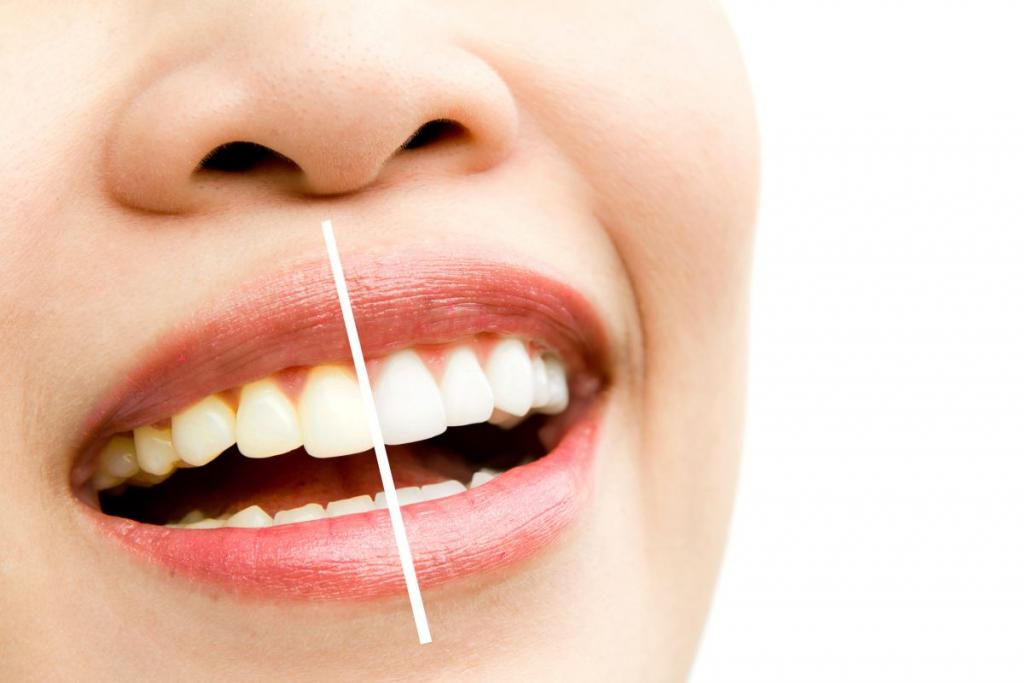 whitening - bleaching treatment ,woman teeth and smile, before a